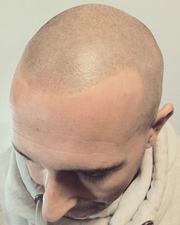 Тату на шраме,  перекрытие и реставрация тату,  трихопигментация,  микропигментация головы